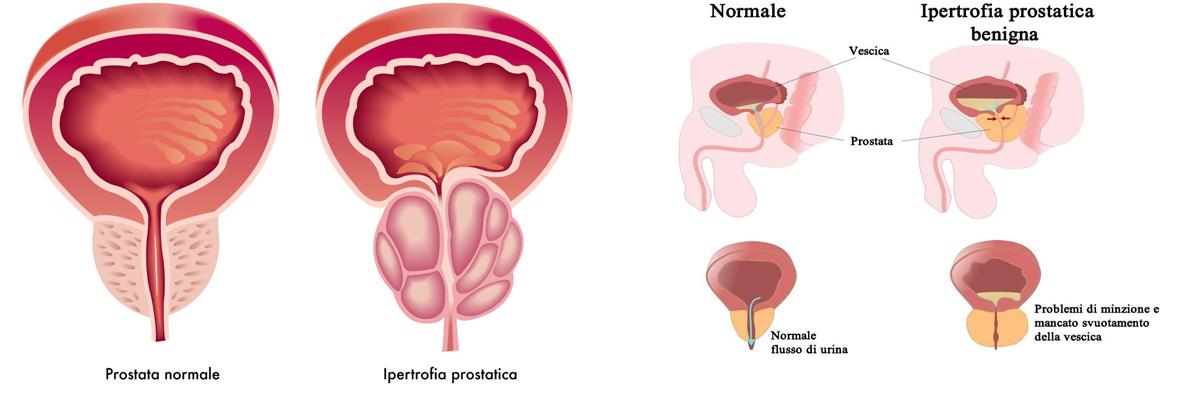 reddit ingrossamento della prostata